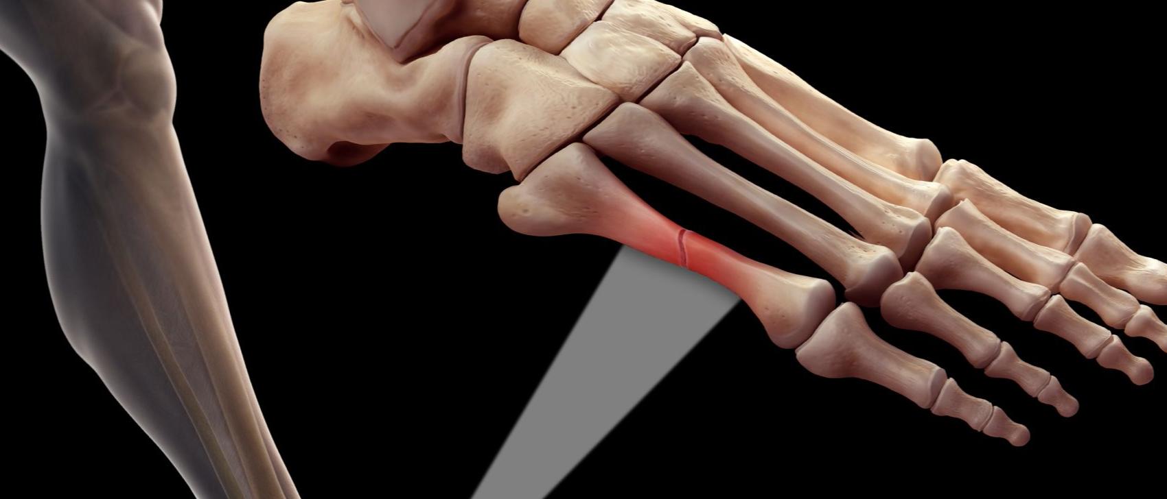 Помогает ли аппарат алмаг 01 при переломах костей