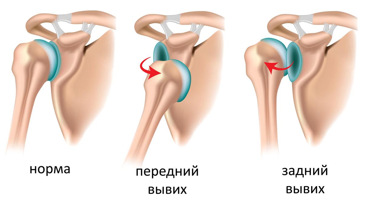 Вывих сустава мазь реактивный артрит тазобедренного сустава симптомы и лечение