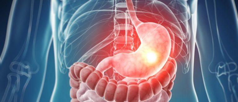Лечение гастрита с нулевой кислотностью